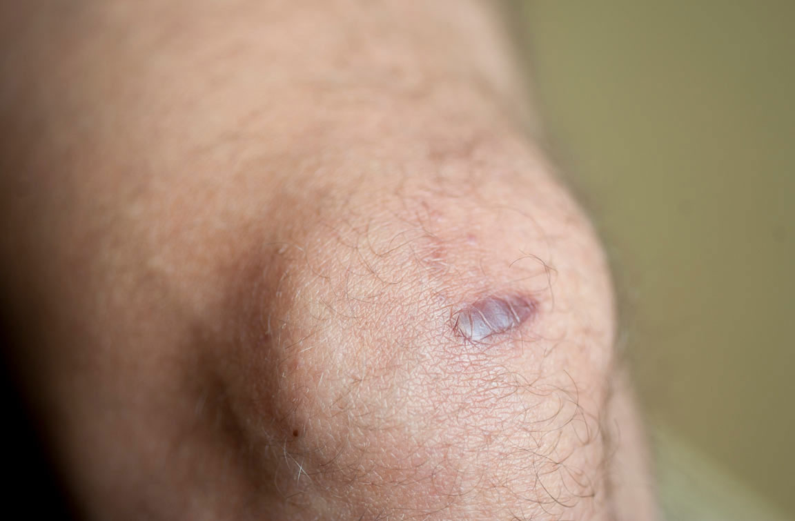 How do keloid scars form?