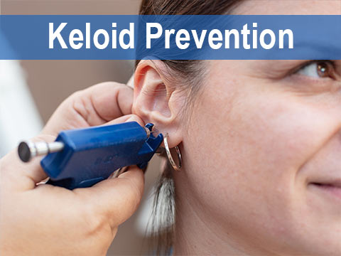 Keloid Prevention